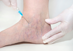 Sclerotherapy Treatment UK
